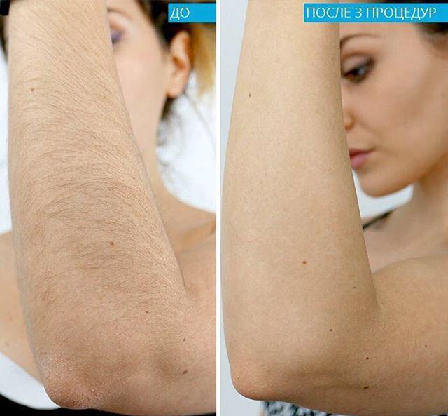 диодный лазер фото до и после